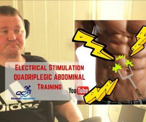FES functional electrical stimulation abdominals quadriplegic video YouTube E stem paralysis
