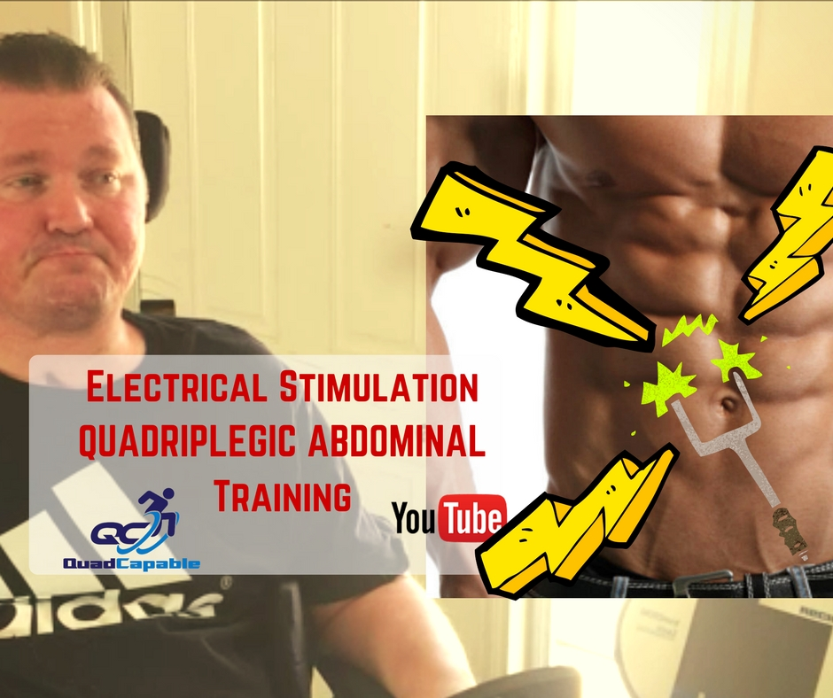 FES functional electrical stimulation abdominals quadriplegic video YouTube E stem paralysis