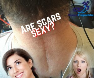 Are scars sexy quadriplegic gaming living with paralysis